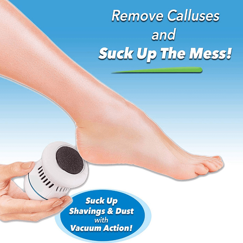 Callus Remover With Built-In Vacuum
